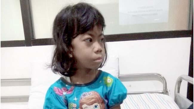 Cinta, Pasien Jantung Bocor Dirujuk ke RS Syaiful Anwar Malang