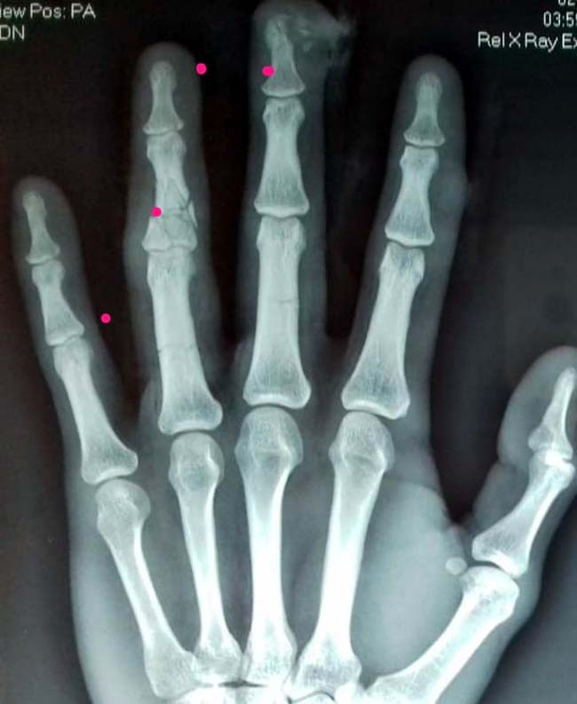 tulang jari kiri adit terlihat patah dan ada yang remuk dibagian ujung. (repro)