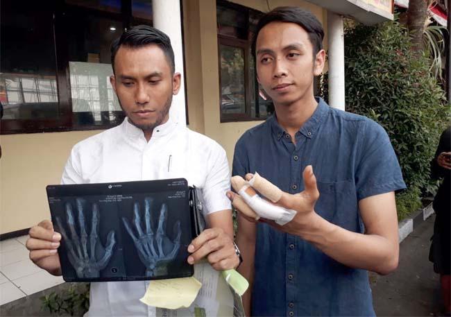 Korban Adit saat datangi Polrea Malang Kota bersama.kuasa hukumnya. (gie)