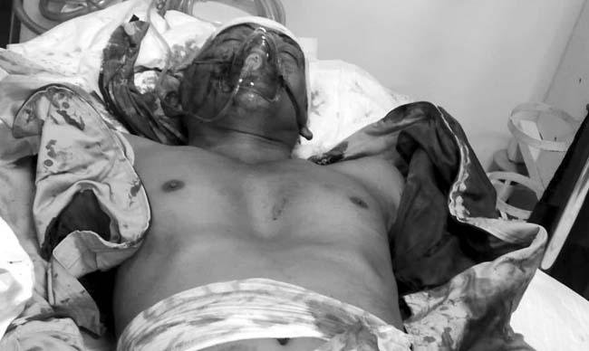 Terkapar, Abdul Aziz mengalami luka bacok sedang dirawat di RSUD Syamrabu